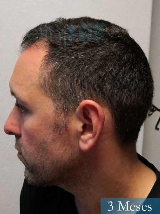 Manuel 39 Coruña injerto capilar turquia 3 meses 5