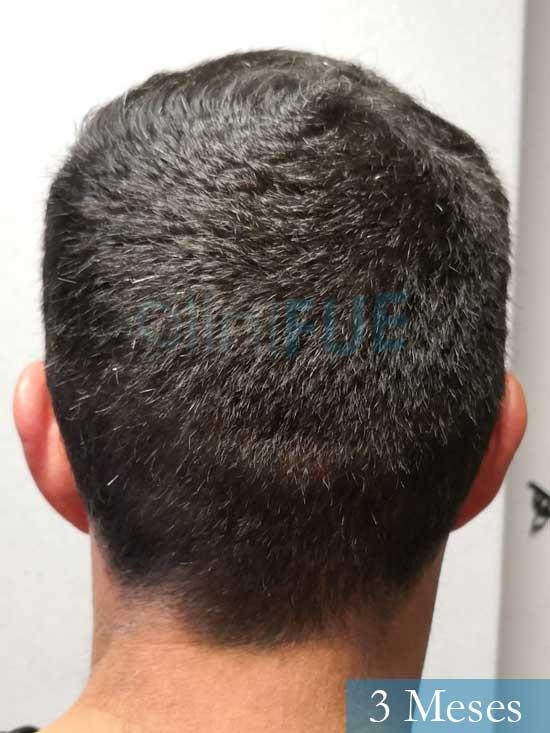 Manuel 39 Coruña injerto capilar turquia 3 meses 6