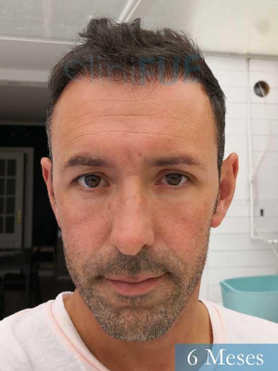 Manuel 39 Coruña injerto capilar turquia 6 meses
