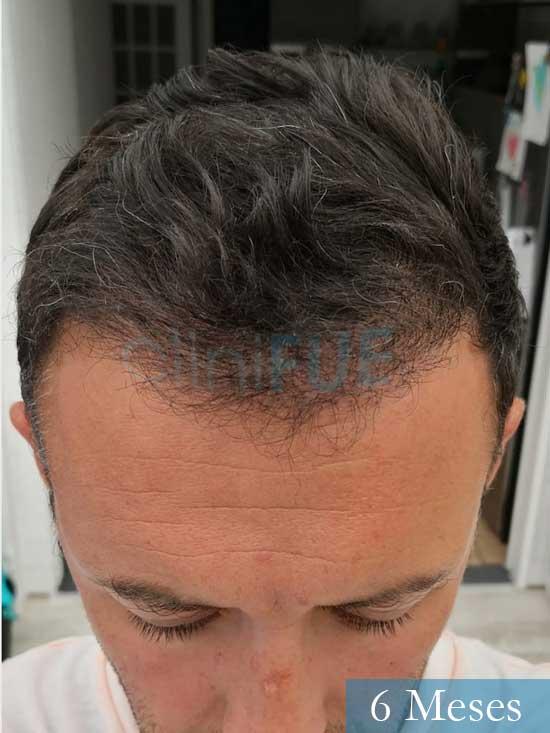 Manuel 39 Coruña injerto capilar turquia 6 meses 2