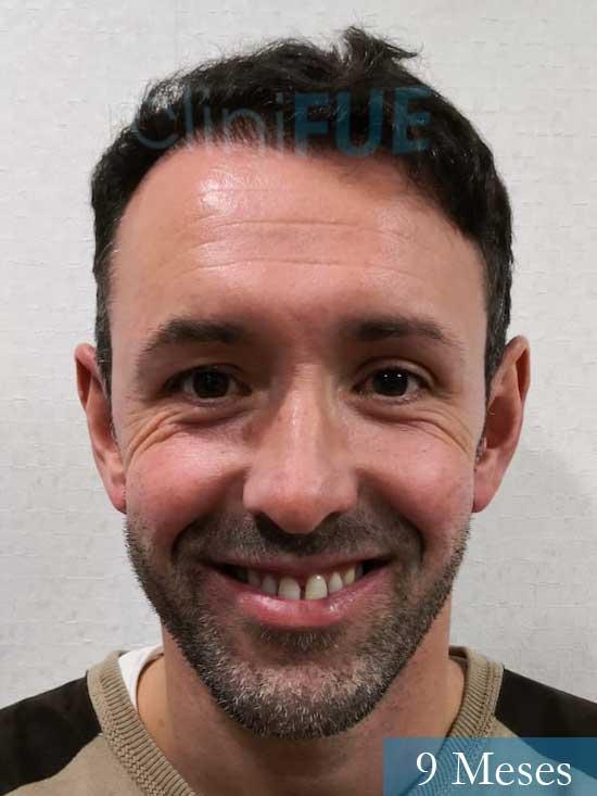 Manuel 39 Coruña injerto capilar turquia 9 meses