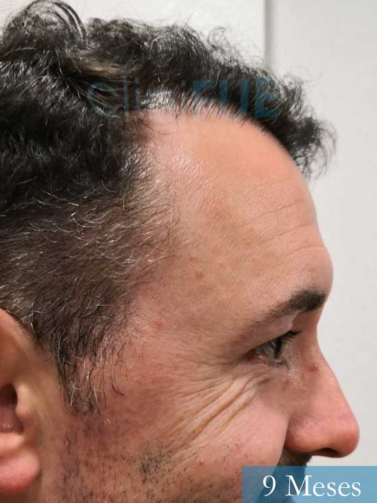 Manuel 39 Coruña injerto capilar turquia 9 meses 3
