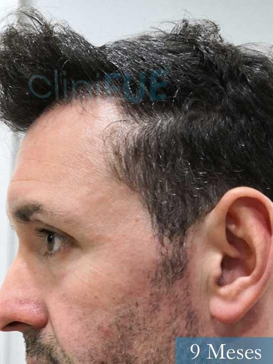 Manuel 39 Coruña injerto capilar turquia 9 meses 4