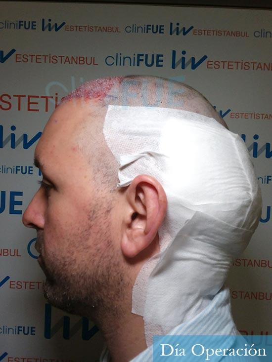 Manuel 39 Coruña injerto capilar turquia dia operacion 4