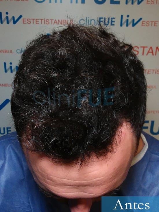 Manuel 39 Coruña injerto capilar turquia Antes 2