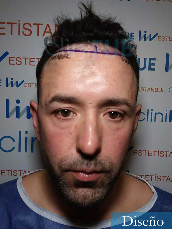 Manuel 39 Coruña injerto capilar turquia dia operacion diseno
