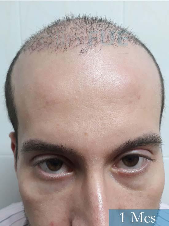 Marc 30 Tarragona trasplante capilar turquia 1 mes