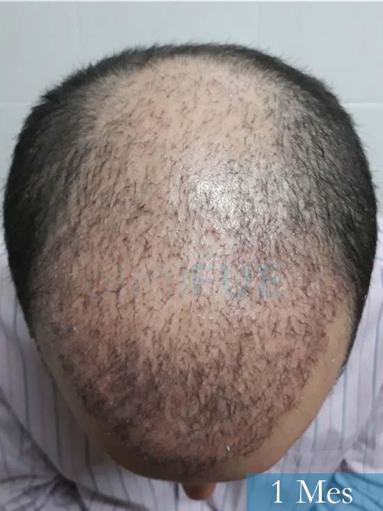 Marc 30 Tarragona trasplante capilar turquia 1 mes 2