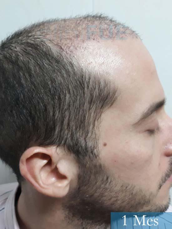 Marc 30 Tarragona trasplante capilar turquia 1 mes 3