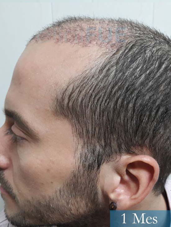 Marc 30 Tarragona trasplante capilar turquia 1 mes 4
