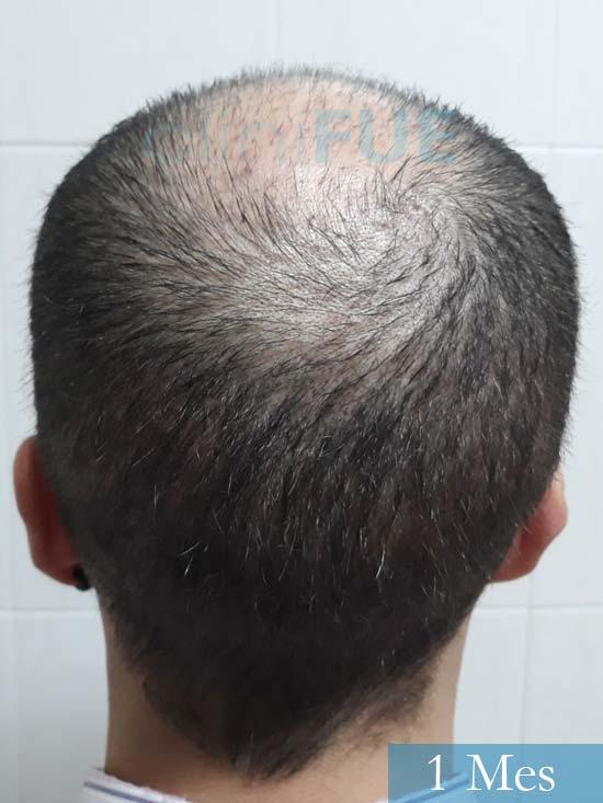 Marc 30 Tarragona trasplante capilar turquia 1 mes 5
