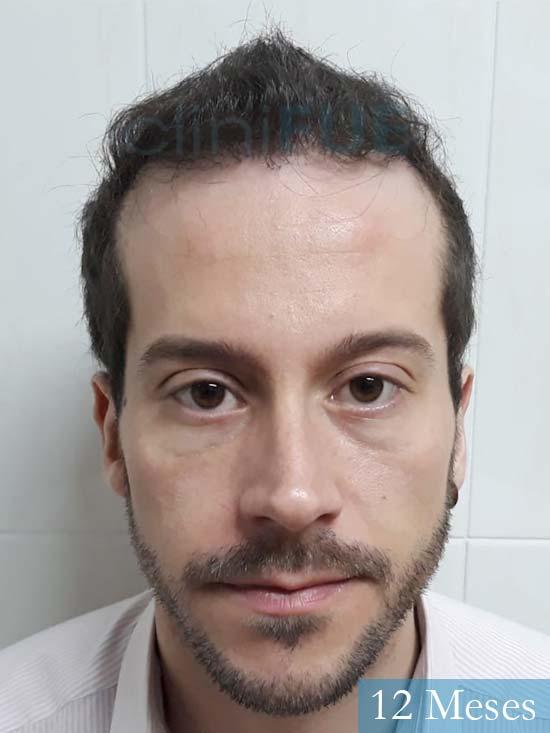 Marc 30 Tarragona trasplante capilar turquia 12 meses
