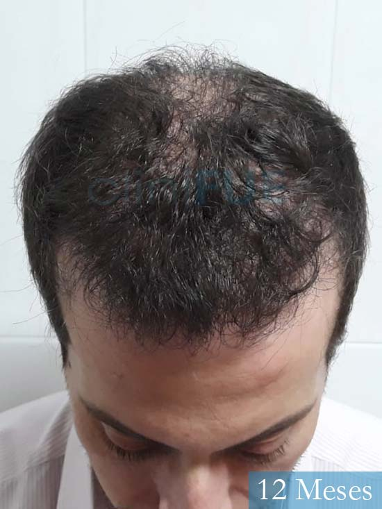 Marc 30 Tarragona trasplante capilar turquia 12 meses 2