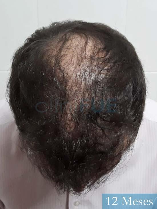 Marc 30 Tarragona trasplante capilar turquia 12 meses 3