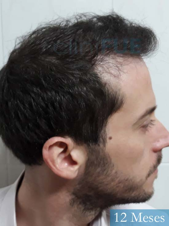 Marc 30 Tarragona trasplante capilar turquia 12 meses 4