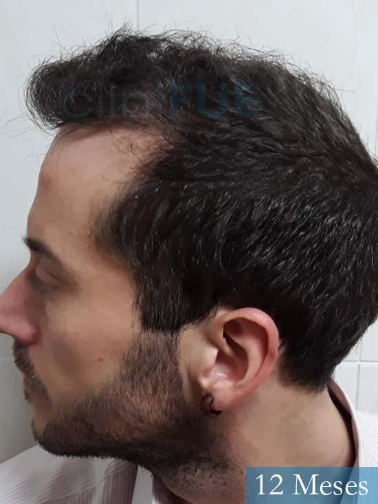 Marc 30 Tarragona trasplante capilar turquia 12 meses 5