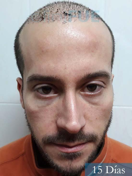 Marc 30 Tarragona trasplante capilar turquia 15 dias