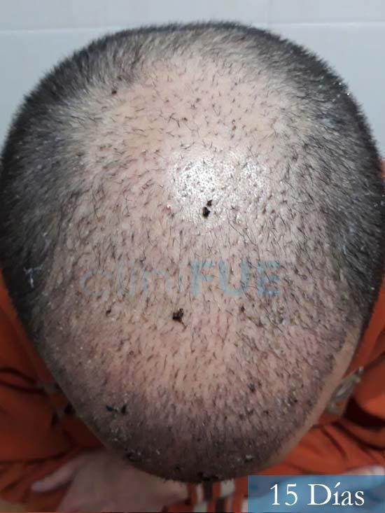 Marc 30 Tarragona trasplante capilar turquia 15 dias 2