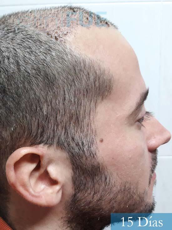 Marc 30 Tarragona trasplante capilar turquia 15 dias 3