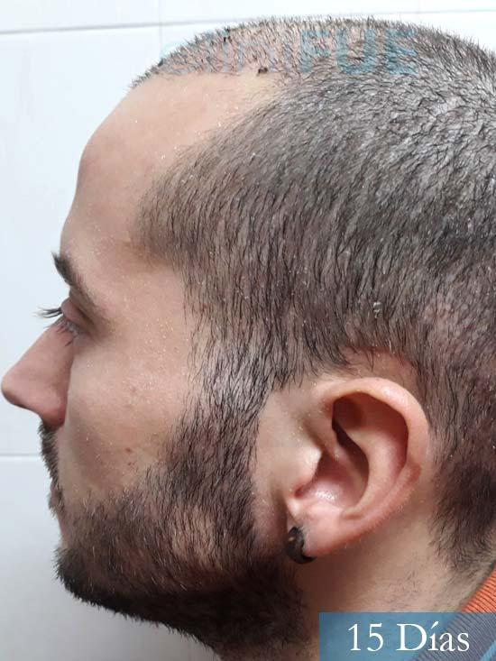 Marc 30 Tarragona trasplante capilar turquia 15 dias 4