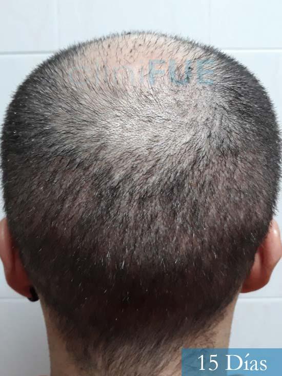 Marc 30 Tarragona trasplante capilar turquia 15 dias 5