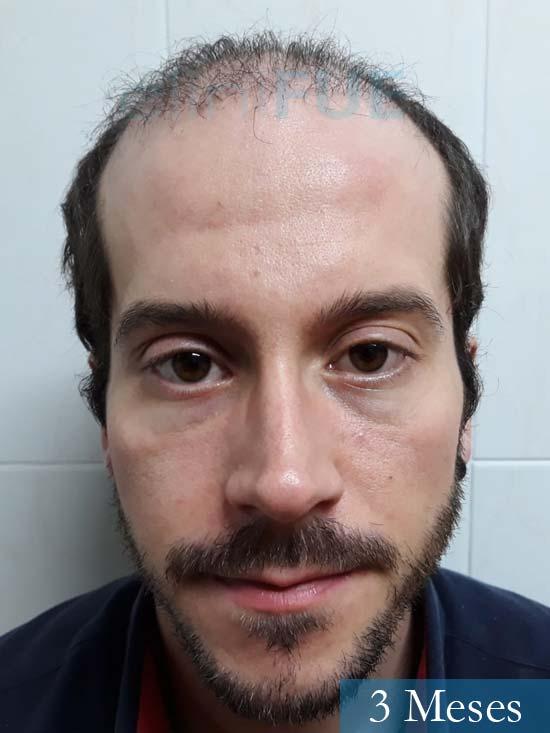 Marc 30 Tarragona trasplante capilar turquia 3 meses