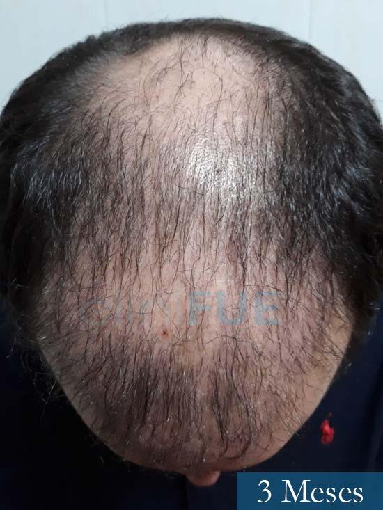 Marc 30 Tarragona trasplante capilar turquia 3 meses 2