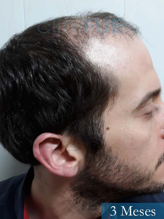 Marc 30 Tarragona trasplante capilar turquia 3 meses 4