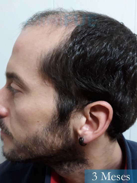 Jordi 56 Tarragona trasplante capilar turquia 3 meses 4