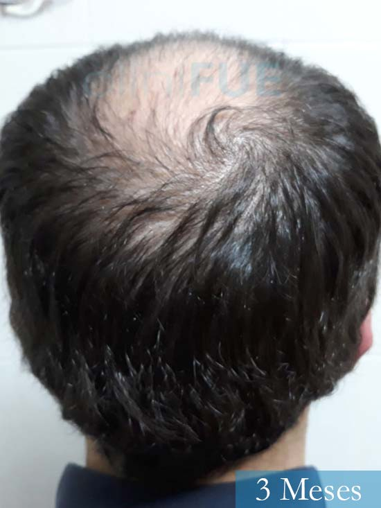 Marc 30 Tarragona trasplante capilar turquia 3 meses 5