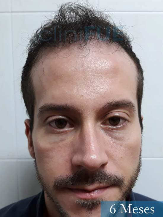 Marc 30 Tarragona trasplante capilar turquia 6 meses