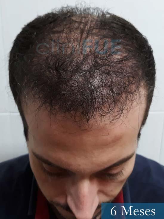 Marc 30 Tarragona trasplante capilar turquia 6 meses 2