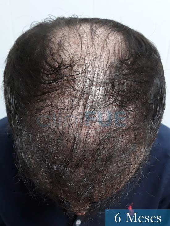 Marc 30 Tarragona trasplante capilar turquia 6 meses 3