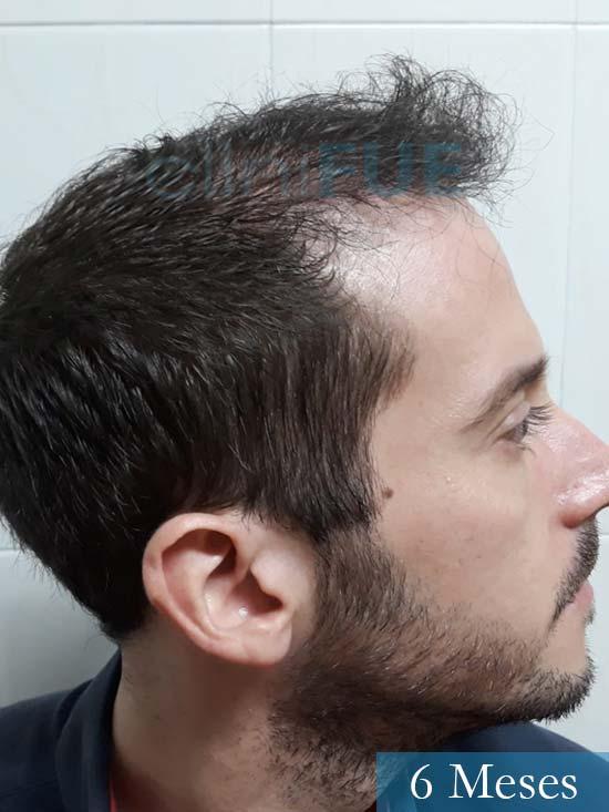 Marc 30 Tarragona trasplante capilar turquia 6 meses 4