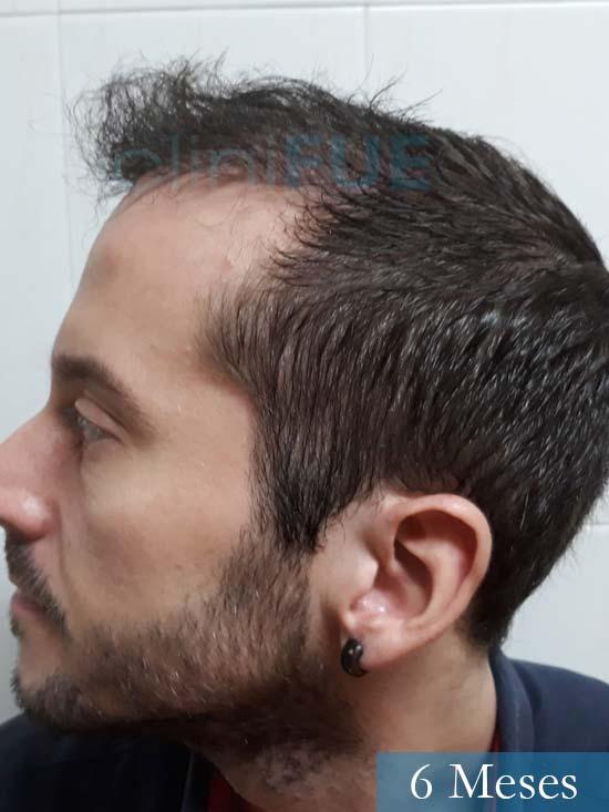 Marc 30 Tarragona trasplante capilar turquia 6 meses 5