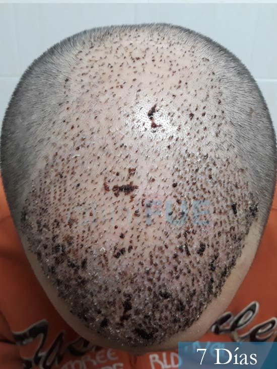 Marc 30 Tarragona trasplante capilar turquia 7 dias 2