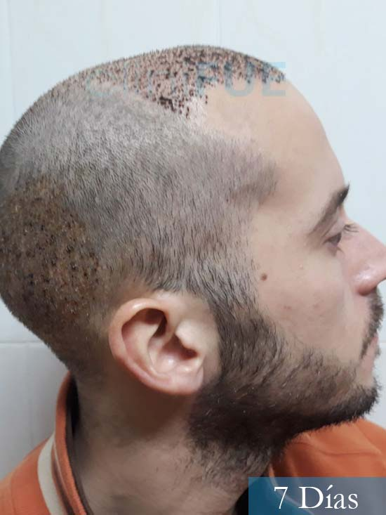 Marc 30 Tarragona trasplante capilar turquia 7 dias 3