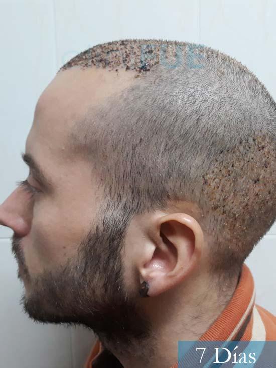 Marc 30 Tarragona trasplante capilar turquia 7 dias 4