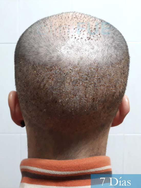 Marc 30 Tarragona trasplante capilar turquia 7 dias