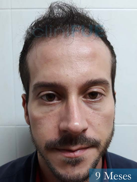 Marc 30 Tarragona trasplante capilar turquia 9 meses