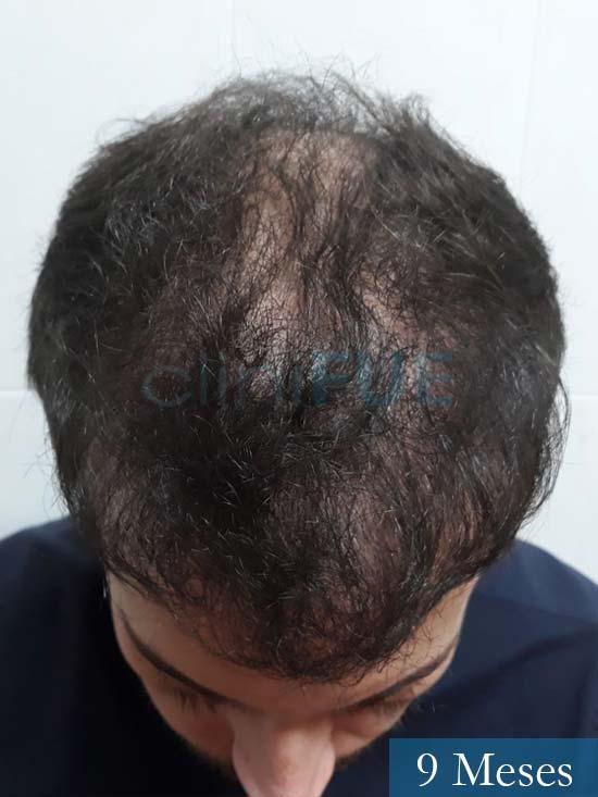 Marc 30 Tarragona trasplante capilar turquia 9 meses 2