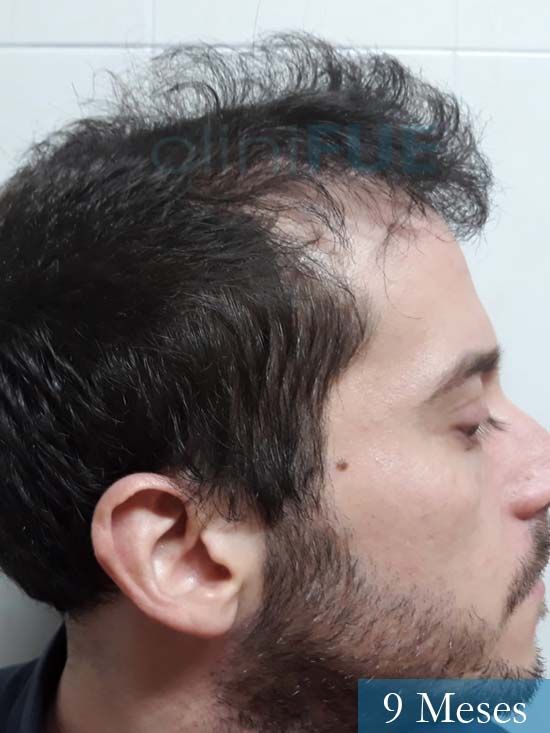 Marc 30 Tarragona trasplante capilar turquia 9 meses 3