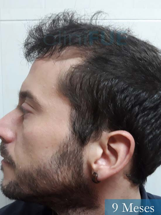 Marc 30 Tarragona trasplante capilar turquia 9 meses 4