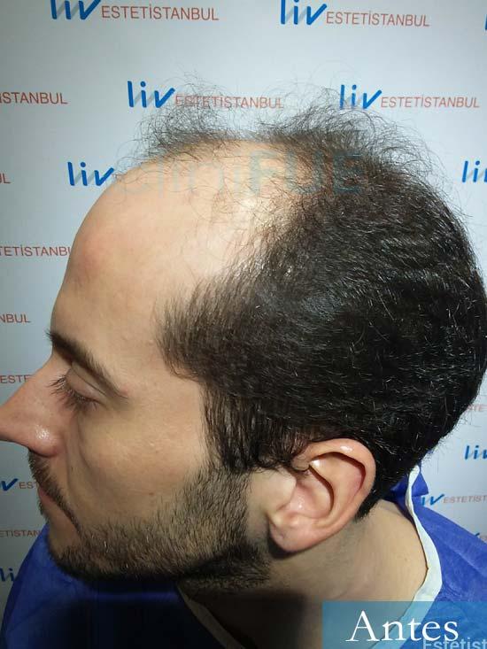 Marc 30 Tarragona trasplante capilar turquia antes 4