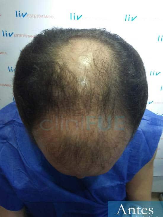 Marc 30 Tarragona trasplante capilar turquia antes 2