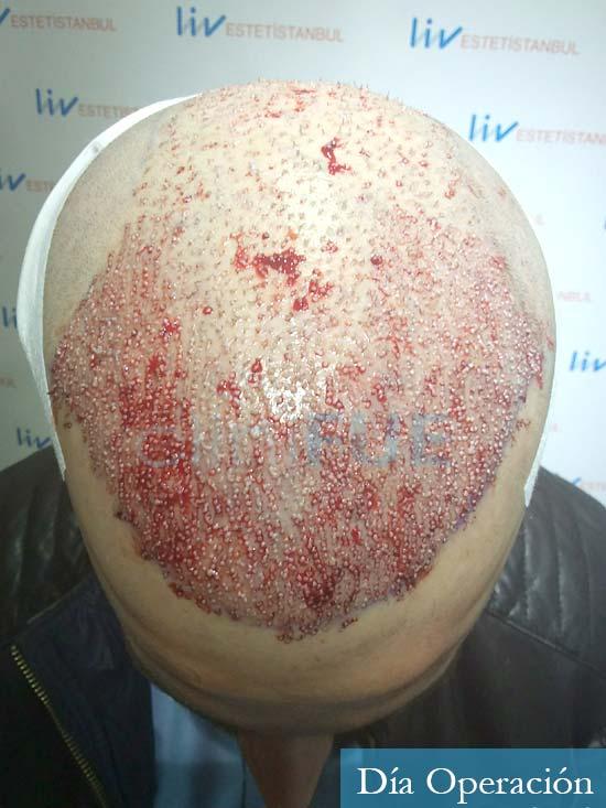 Marc 30 Tarragona trasplante capilar turquia dia operacion 2
