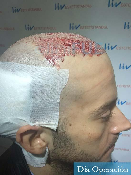 Marc 30 Tarragona trasplante capilar turquia dia operacion 3
