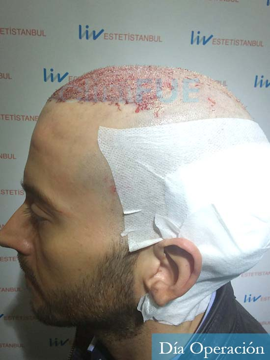 Marc 30 Tarragona trasplante capilar turquia dia operacion 4