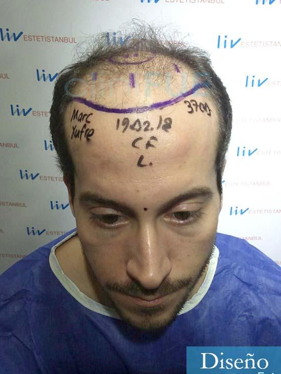 Marc 30 Tarragona trasplante capilar turquia dia operacion diseno