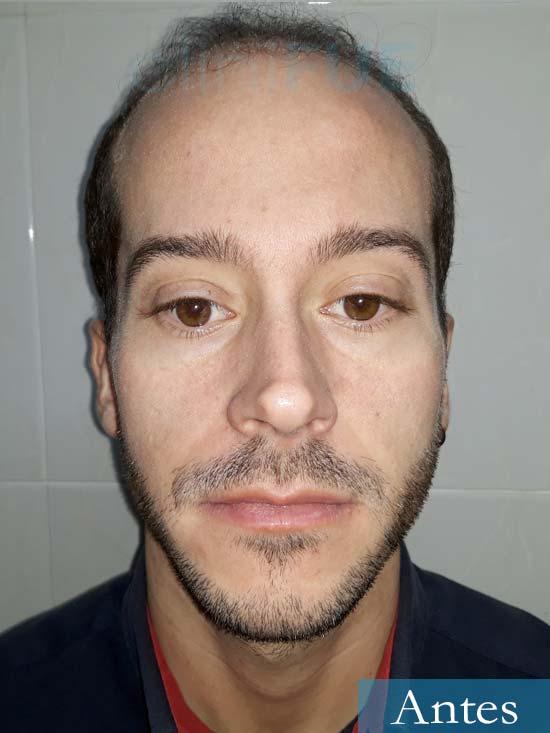 Marc 30 Tarragona trasplante capilar turquia antes